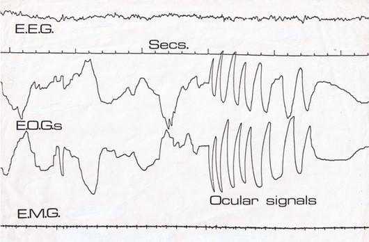 清醒梦EEG,EOG,EMG - 土人仓库